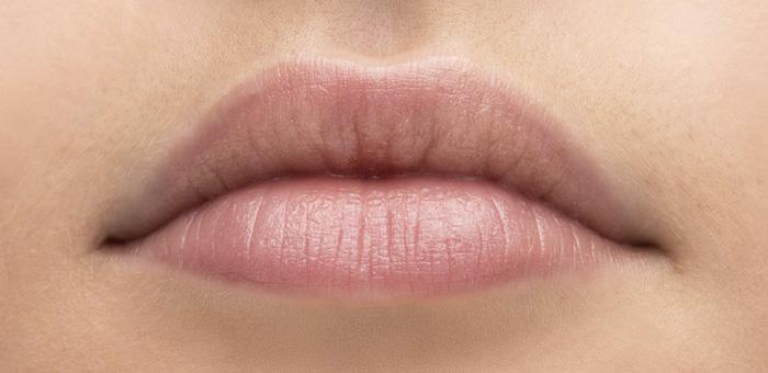 Tratamiento perfilado de labios